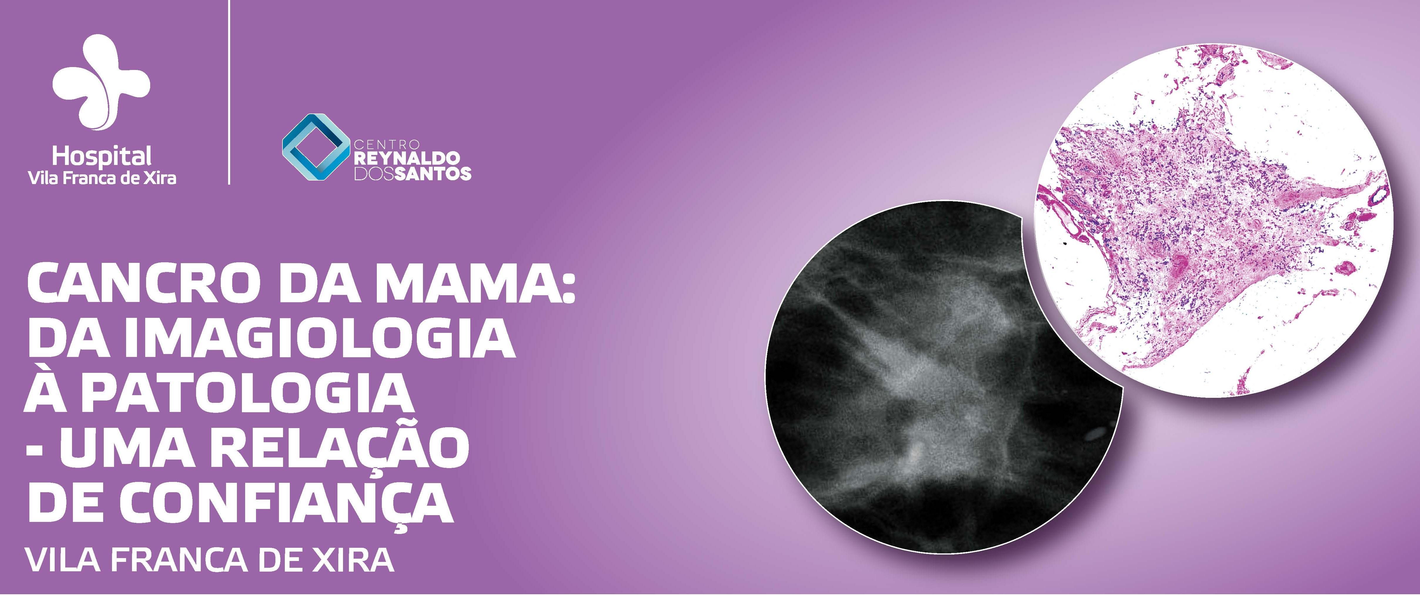 hospital-de-vila-franca-de-xira-Carcinoma da Mama: da imagiologia à anatomia patológica